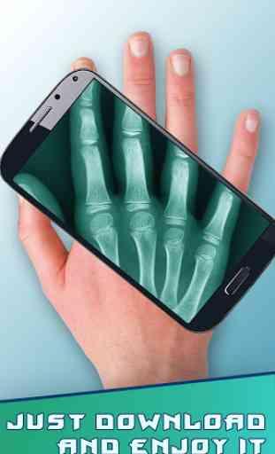 Amazing X-Ray 3