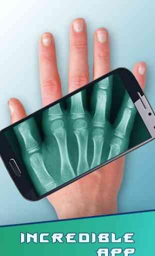 Amazing X-Ray 4
