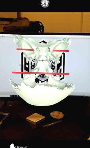 EOC Cranium 4